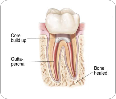 Picture of a tooth